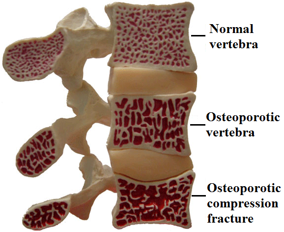 Osteoporotic fracture spine